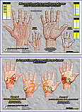 3-Phase Hand Reflex Therapy Charts