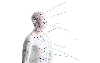 Golden Needle Acupuncture, Herbal & Medical Supply